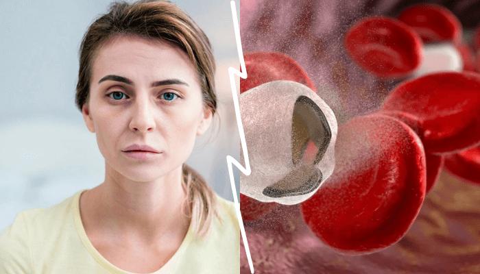 Железодефицитная анемия. Что это такое